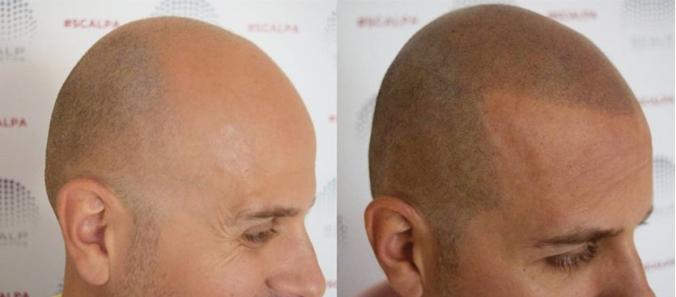 micropigmentación calvicie