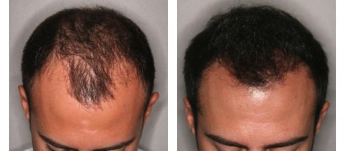 microinjertos de cabello para calvicie